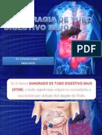 hemorragiatubodigestivobajo-100527024523-phpapp01