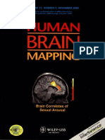 Brain Processing of SA Cov