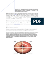 Cancer CevicoUterino.docx