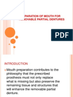 Preparation of Mouth for Removable Partial Dentures