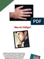 Hautkrankheit Vitiligo, Schüssler Salze Vitiligo, Vitiligo Bund, Vitiligo Homöopathie