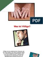 Vitiligo Homöopathie, Vitiligo Abdecken, Vitiligo Bei Kindern, Vitiligo Hamburg