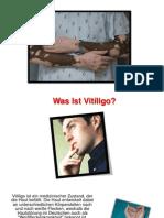 Vitiligo Ursachen, Selbstbräuner Bei Vitiligo, Phenylalanin Vitiligo, Wien Vitiligo