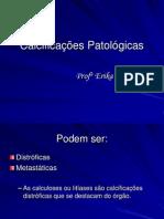 Calcificações Patológicas