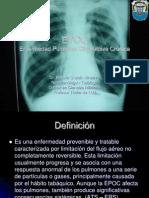 Epoc - Dr. Betulio Chacin-1