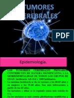 Kary Expo Neuro Tumores Craneales Dr Ortiz Hoy