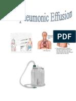 Parapneumonic Effusion- Case Study Adult I - Without Author