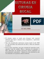 Suturas en Cirugia Bucal