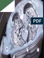 2014 05 28_El Instituto de Técnicas Avanzadas contra el Cáncer pone en marcha una pionera Unidad de Diagnóstico Precoz y Tratamiento del Cáncer de Pulmón