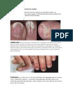 ALTERACIONES Y PATOLOGIAS DE LAUÑAS.pdf