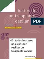 Los Limites de Un Transplante Capilar