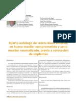 220 CIENCIA Injerto Autologo Cresta Iliaca