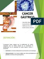 Adenocarcinoma de Estomago