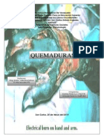 Quemaduras (Medicina Legal) (2)