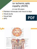 AION Anterior Ischemic Optic Neuropathy AION