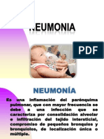 NEUMONIA Pediatria
