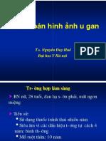 Chan doan hinh anh u gan.pdf