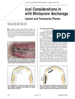 9 Biomechanical Considerations in Treatment With Miniscrew Anchorage Part 2 the Horizontal and Transverse Planes