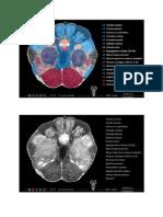 Caudal Midbrain Inferior Colliculus