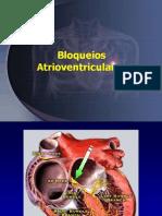07+-+ECG+-+Bloqueios+atrioventriculares