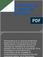 Nomenclatura y Clasificacion de Las Lesiones Cariosas