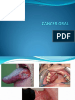 Cancer Oral