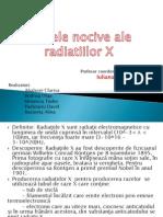 Efectele Nocive Ale Radiatiilor X