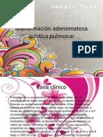 Malformación adenomatosa quística pulmonar.pptx