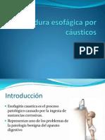 esofagitis causticos