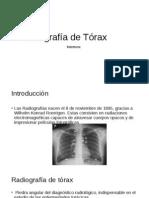 Radiografía de Tórax Adulto