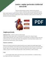 Cardiopatie ischemica