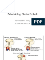 Patofisiologi Stroke Emboli