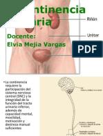 Incontinencia Urinaria-mayo 2014