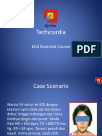 Tachycardia.pdf