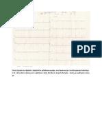 Diabetic Polineuropathy