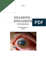 EPIESCLERITIS