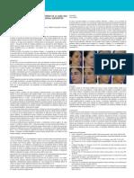 Tratamiento Del Tercio Medio Inferior de La Cara Con Perfectha Derm - Deep