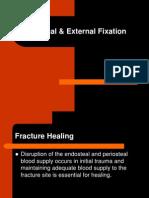 Internal & External Fixation-NEW