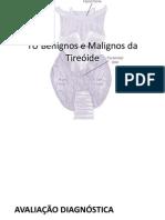 TU Benignos e Malignos Da Tireóide