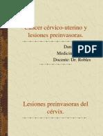 33 on CA Cervico-Uterino