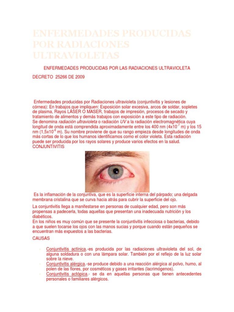 enfermedades producidas por radiaciones ultravioleta (conjuntivitis y lesiones de córnea)