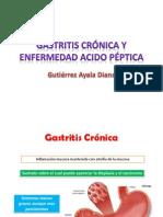 Gastritis Crónica y Enfermedad Acido Péptica