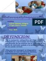 Histerosalpingografia Imagenes