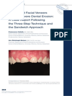 Palatal and Facial Veneers to Treat Severe Dental Erosion- A Case Report Following the Three-Step Technique and the Sandwich Approach