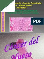 Cancer Del Hueso