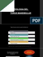 Etiologia Del Torus Mandibular