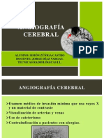 Angiografía Cerebral Final