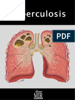 10 Tuberculosis Curso Mir
