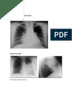Apunte de Radiografía de Tórax Neumonia