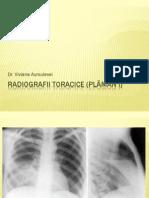 Radiografii (PLAMAN I)